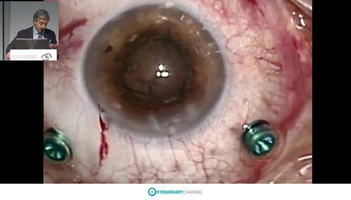 eye-surgery-channel
